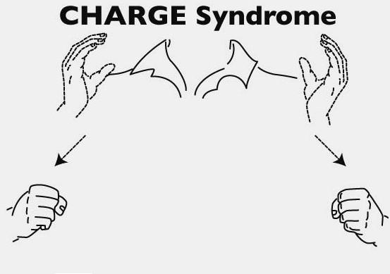 overview charge syndrome foundation. Black Bedroom Furniture Sets. Home Design Ideas