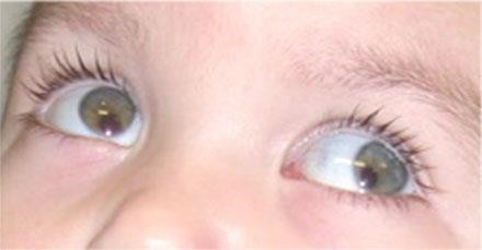 The picture below is a coloboma of the iris.