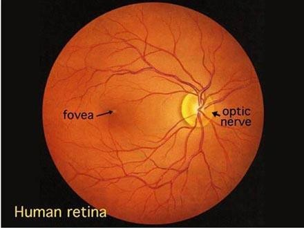 The picture below is a normal human retina.