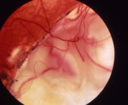 The picture below is a retinal coloboma.